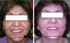 Результат перелечивания в клинике «Денталь». У пациентки нормализовался слух, исчезли щелчки в области суставов, устранена асимметрия лица, улыбка эстетична, не беспокоят больше боли в области шеи, головы, спины.