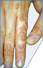 Папиллома -вирус. Насколько опасно?