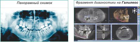 Компьютерный томограф Галилеос
