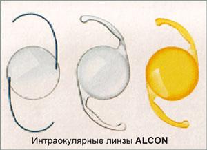 Интраокулярные линзы ALCON