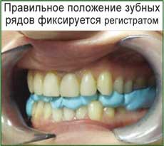 dental-foto
