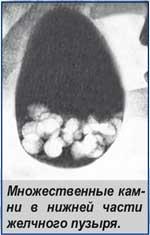 Множественные камни в нижней части желчного пузыря