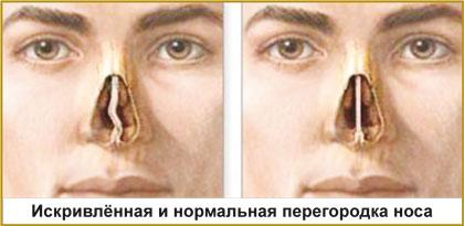 Искривленная и нормальная перегородка носа, септопластика Красноярск