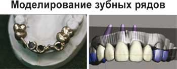 Моделирование зубных рядов. 3D-томография в имплантологии.