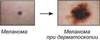 Диагностика кожных новообразований