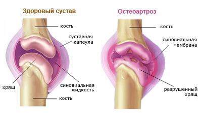Остеартроз