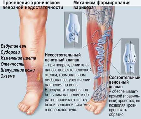 Лечение варикоза, Клиника в Северном, Красноярск