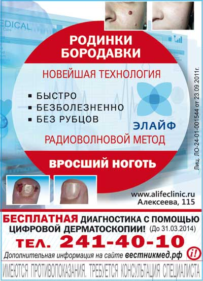 Клиника ЭЛАЙФ: лечение вросшего ногтя и удаление новообразований радиоволновым методом