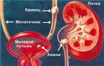 Мочекаменная болезнь