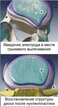 Холодноплазменная нуклеопластика, Красноярск, эффективный способ лечения грыжи позвоночника