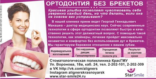 StarSmile: ортодонтия БЕЗ брекетов в Красноярске