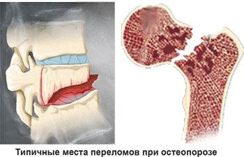 Типичные места переломов при остеопорозе