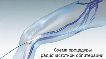 Метод радиочастотной облитерации. Красноярск.