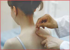 Лечение остеохондроза иглоукалыванием, иглотерапия, Красноярск