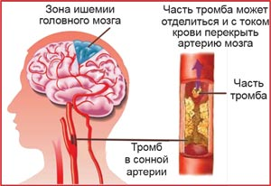 Склеротическая бляшка