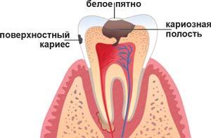 Стадии кариеса. Лечение кариеса, детский кариес, в клинике ДентАрт, Красноярск