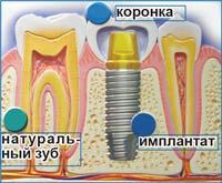 Протезирование на имплантатах, КрасДент, Красноярск
