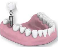 zubnoy-implantat-nedorogo-krasnoyarsk