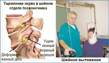 Защемление нерва в руке лечение в домашних условиях