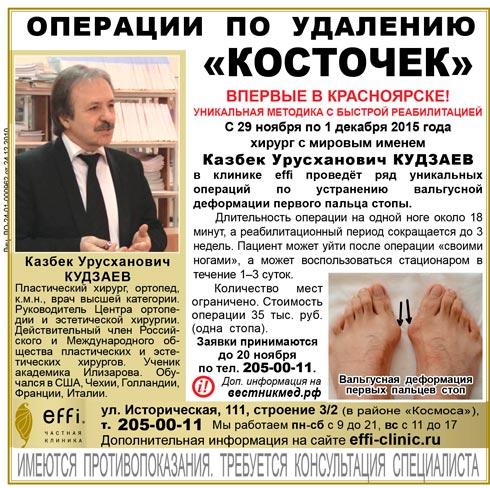 Удаление косточки в Красноярске. Лечение вальгусной деформации стопы.
