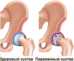Лечебная гимнастика при поражении тазобедренного сустава.