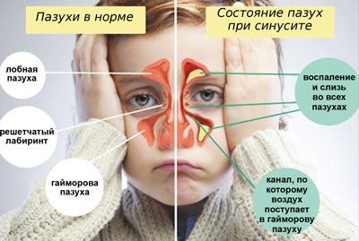 Синусит. Лечение детского синусита в Красноярске.