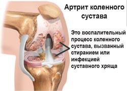 Артрит коленного сустава. Физиотерапия. магнитотерапия. Алмаг