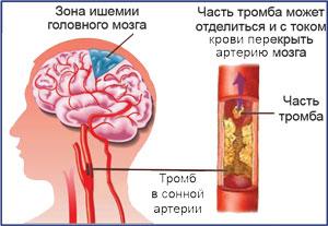 Атеросклероз сонных артерий, транзиторные ишемические атаки, прием флеболога Красноярск