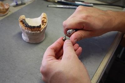 klinika-voka-krasnoyarsk-protezirovanie-zubov-implanty