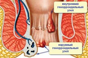 Лечение геморроя Красноярск, клиника Свой доктор