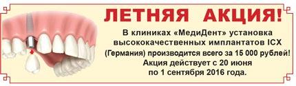 zubnye-implanty-ustanovka-so-skidkoy-krasnoyarsk