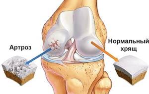 Причины болезней суставов
