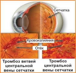 Тромбоз вен сетчатки. Лечение в Красноярске