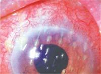 Ксерофтальмия или синдром сухого глаза