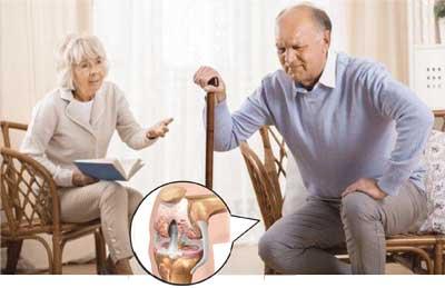 Лечение артрита, артроза в домашних условиях