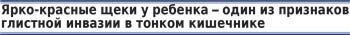 Диагностика и лечение глистных инвазий у детей, Красноярск