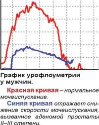 График урофлоуметрии