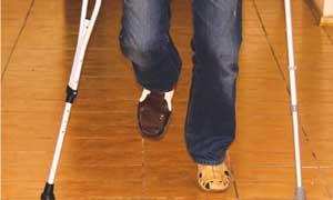 Реабилитация после травм, переломов. Прием мануального терапевта в Красноярске