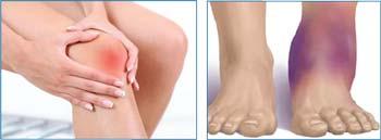 Восстановление после травм коленного, голеностопного сустава