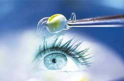 Хирургия катаракты, замена хрусталика в Красноярске