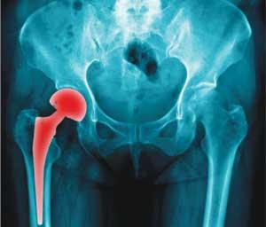 Перелом бедренной кости. Лечение в Красноярске